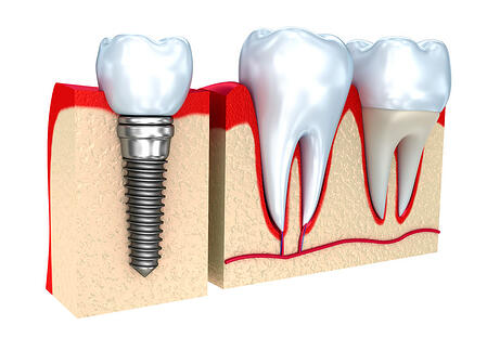 when is a dental crown needed