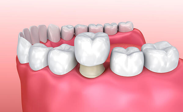 dental crown procedure
