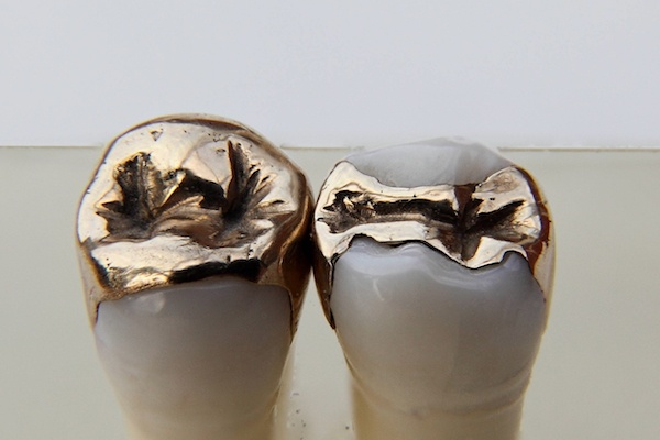 Dental_inlays_Gold_Focus_stacking_with_freeware_CombineZP_12_02