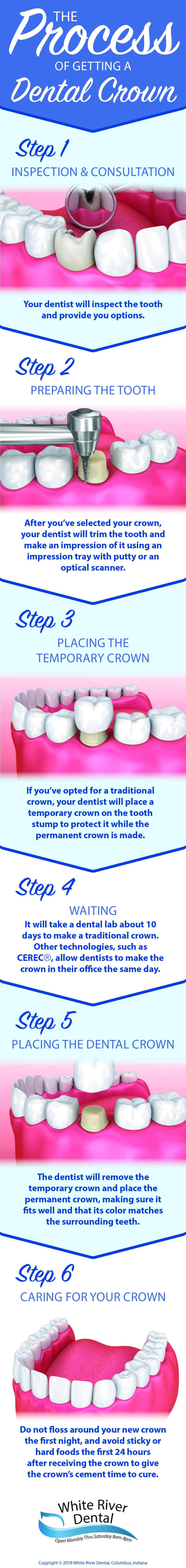 process of getting dental crown