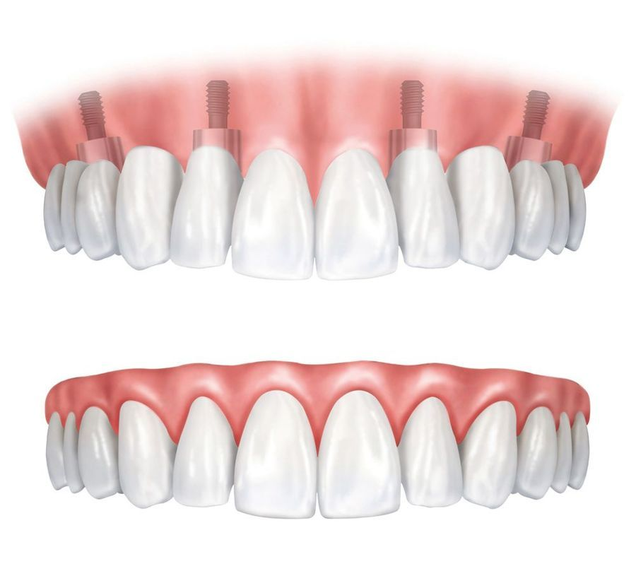 Dental implants keep the denture firmly in place
