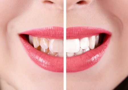 Cosmetic Dentistry: Teeth Cleaning and Whitening