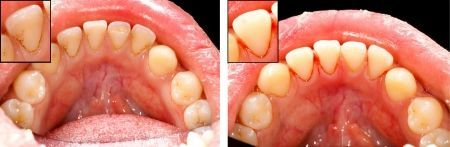 Small Cracked Tooth Before and After