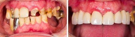 Before and After Teeth Restoration