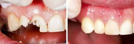 Before and After Chipped/Cracked/Broken Teeth Restoration