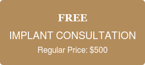 FREE  IMPLANT CONSULTATION  Regular Price: $500