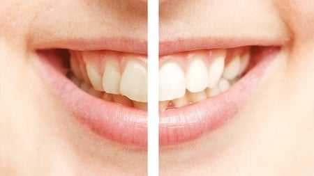 Teeth Whitening Columbus Indiana White River Dental
