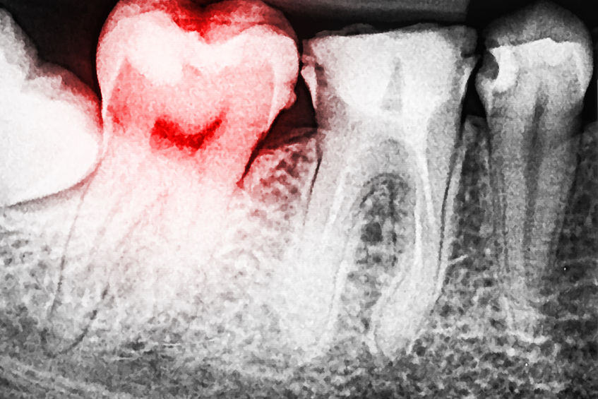 Will dry mouth cause a toothache? - White River Dental, Columbus Indiana Dentist