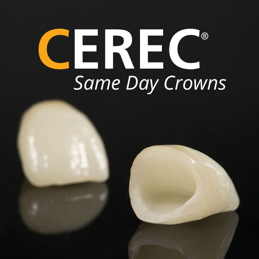 CEREC® same day crowns
