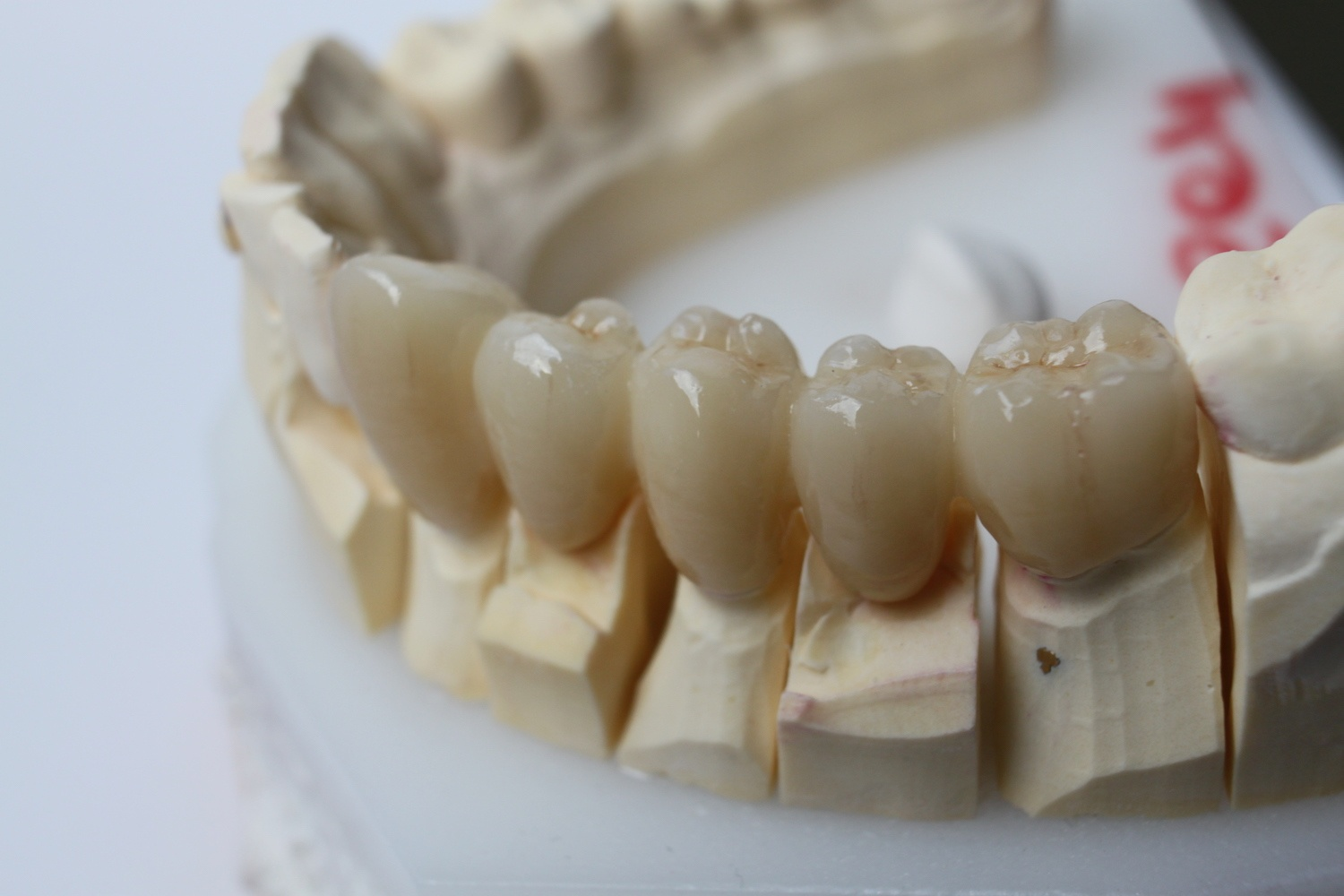 All About Zirconia Crowns: What They Are, How They're Made