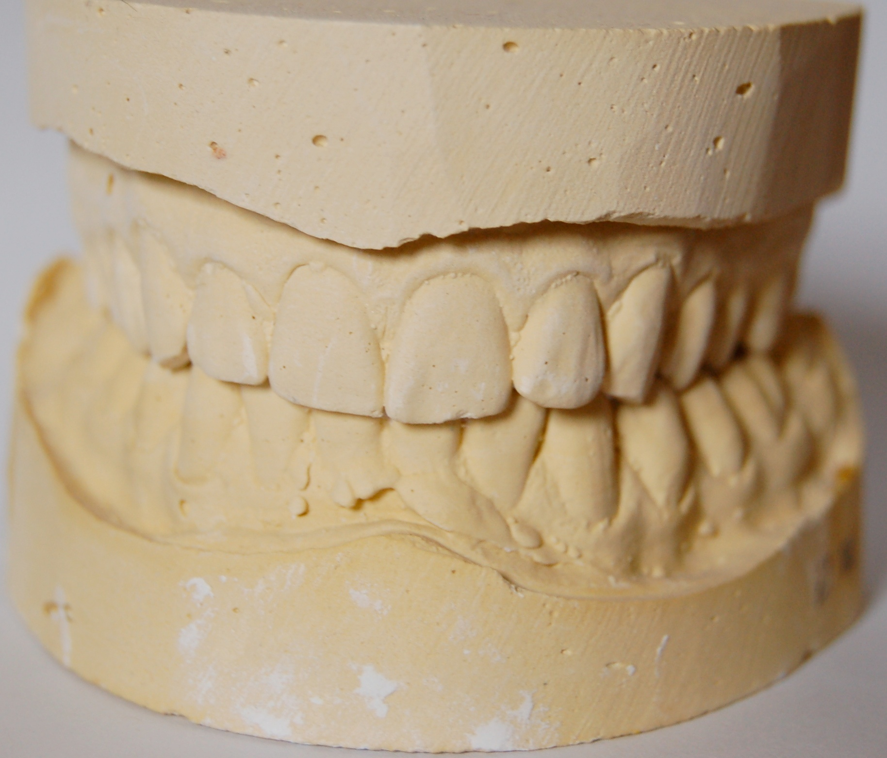 Tooth mold - Zirconia crowns - White River Dental - Columbus, Indiana, Dentist
