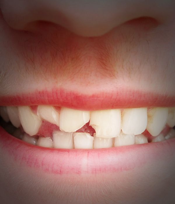 Close up of a smile with severely chipped teeth